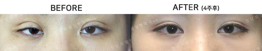 160808_eye_img1