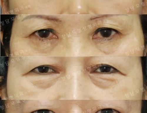 [Dr.김치선 칼럼] 눈밑이 불룩하다면… 지방재배치와 안륜근현수를 이용한 하안검 성형술