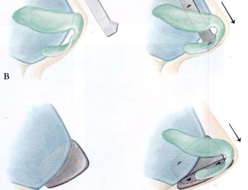[Dr.김치선 칼럼] 코성형재료… 비중격 연골이 정답일까요?