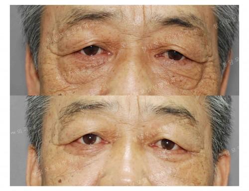남성 하안검 성형술